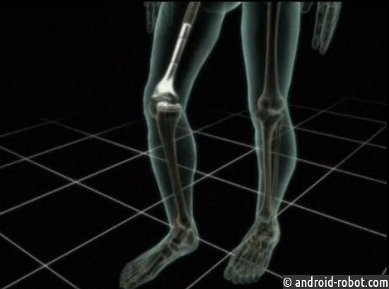 Американские учёные создали 3D-принтер для печати человеческих костей имышц