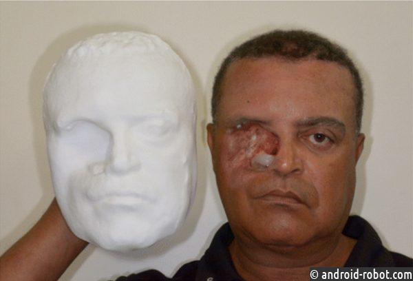 Медсотрудники изготовили протез лица при помощи телефона и3D-принтера