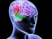 Разработана схема реабилитации после инсульта, основанная на интерфейсе мозг-компьютер и робототехнике