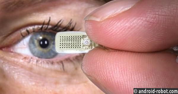 Первый вмире имплант для улучшения памяти: изобретение века