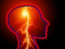 Ученые поведали, как укосмонавтов сдвигается исужается мозг