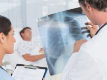 Искусственный интеллект диагностировал пневмонию вместе с врачами
