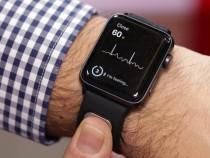 Apple Watch сделает ЭКГ за 30 секунд