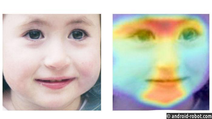 Искусственный интеллект может диагностировать редкие расстройства, используя только фотографию лица