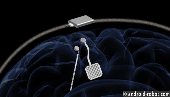Беспроводной «кардиостимулятор для мозга» может предложить новое лечение неврологических расстройств