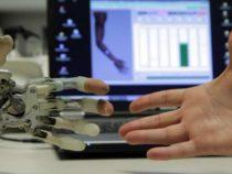 Бионическая реконструкция: после ампутации руки, её можно заменить бионическим протезом