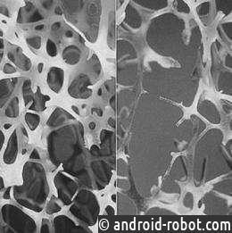 Ультра-крепкие кости, с удивительным происхождением, предлагают новый подход остеопороза
