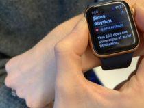 Инновационное исследование сердца Apple сигнализирует о новой эре медицины, и врачи обсуждают результаты