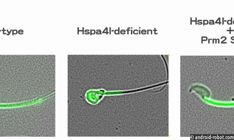 Корни бесплодия хранятся в ДНК