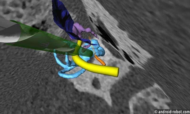 Учёные разрабатывают высокоточный хирургический робот для кохлеарной имплантации